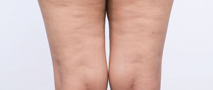 Mr Bryan Mayou on Improving the Appearance of Cellulite