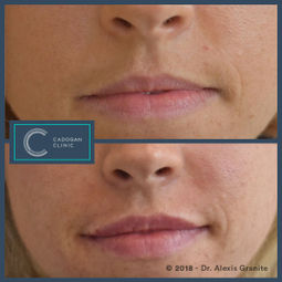 Lip Fillers by Alexis Granite