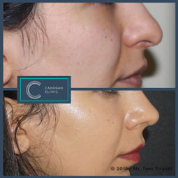 Rhinoplasty by Tunc Tiryaki
