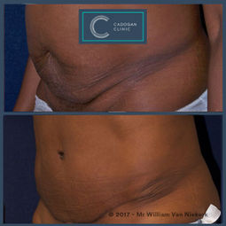 Abdominoplasty by William Van Niekerk