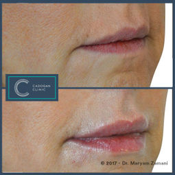 Lip Enhancement by Maryam Zamani