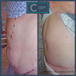 Abdominoplasty by James Colville