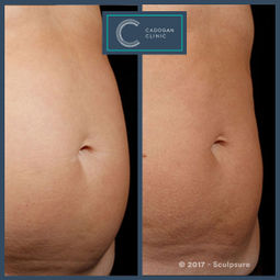 Sculpsure by Libby Wallace